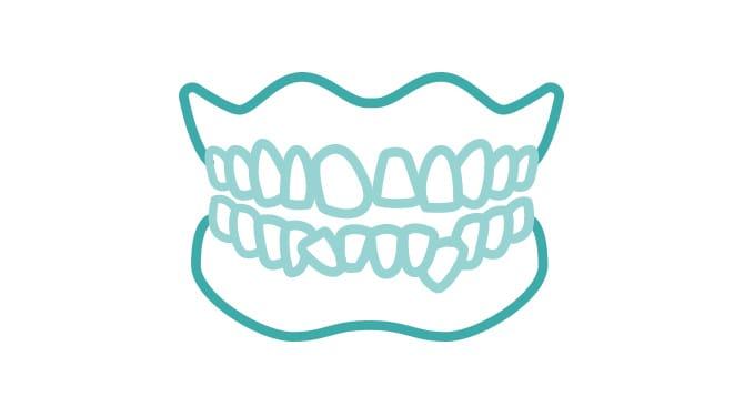 歯並びの乱れイメージ画像